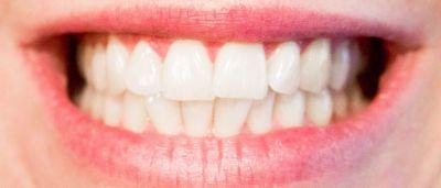 Používejte kokosovou ústní vodu pro zářivě bílé zuby!