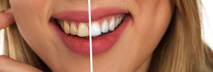 Zuby - bělení zubů