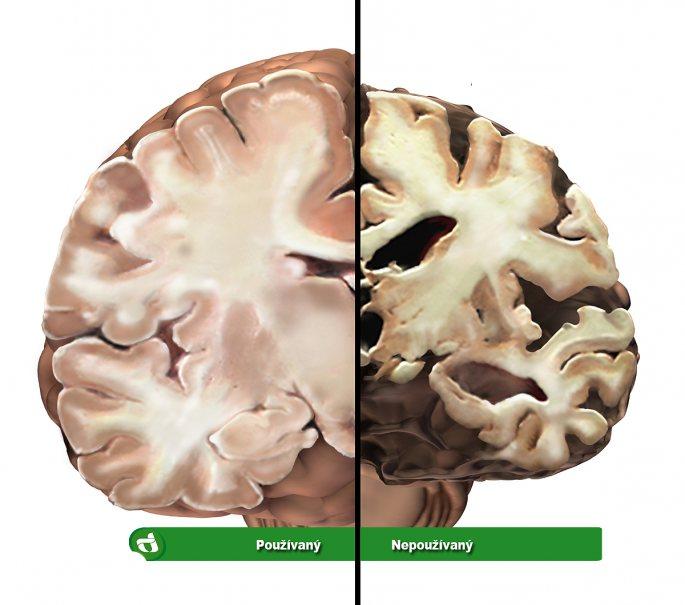 Používaný a nepoužívaný mozek